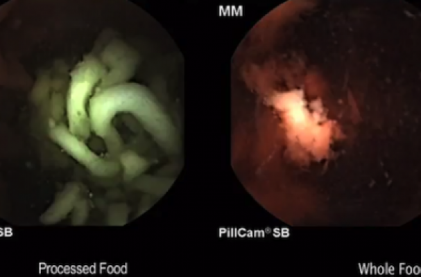 What Ramen Looks Like in Your Stomach